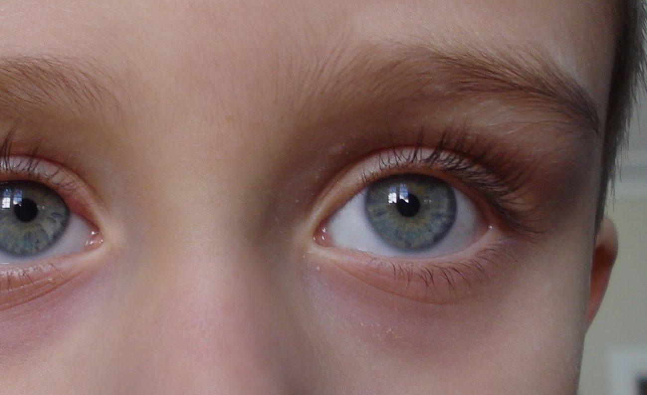 oftalmológico